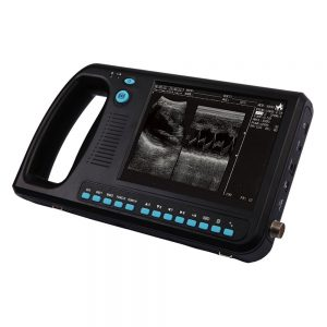 WD-300 Ultrasound Machine